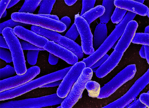 What is E. Coli and How Can I Protect Myself?